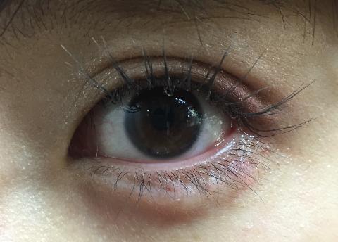 腫れ 痛い 袋 涙 片目