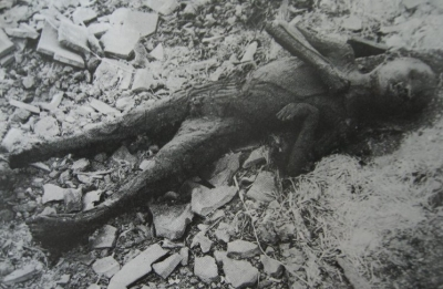 menino carbonizado com bomba atomica em hiroshima
