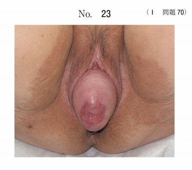 I70.jpg
