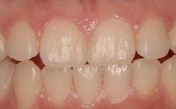 すきっ歯ダイレクトボンディング後