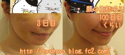 20150731124501.jpg