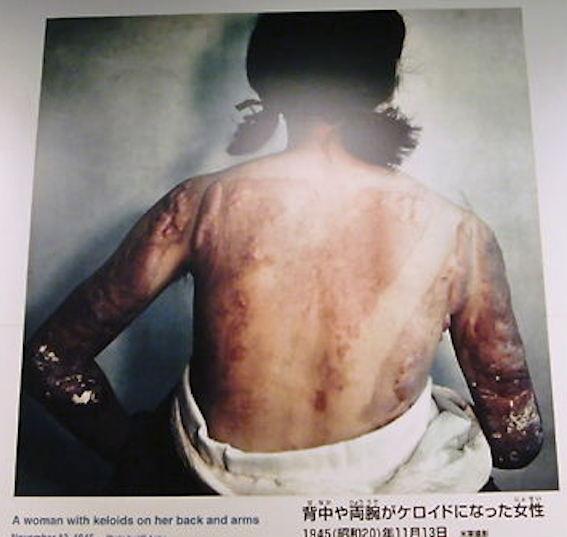 広島原爆資料006