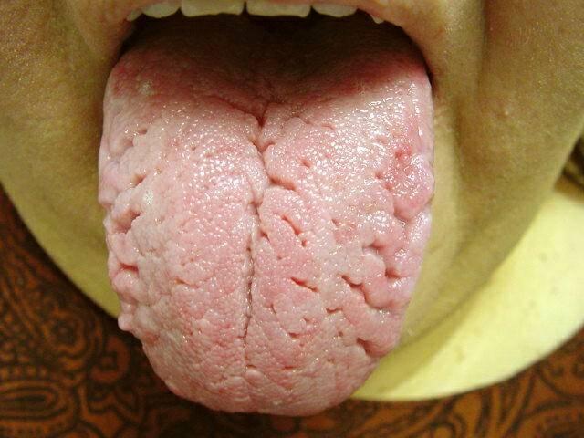 Scrotal_Tongue379.jpg