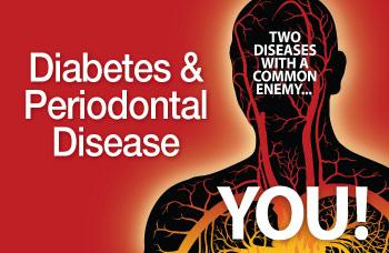 diabetes-and-periodontal-disease-350.jpg