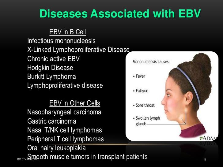 epstein-barr-virus-5-728.jpg