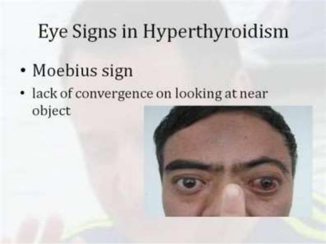 hyperthyroidism-part2-by-dr-bashir-associate-professor-medicine-sopore-kashmir-69-638.jpg