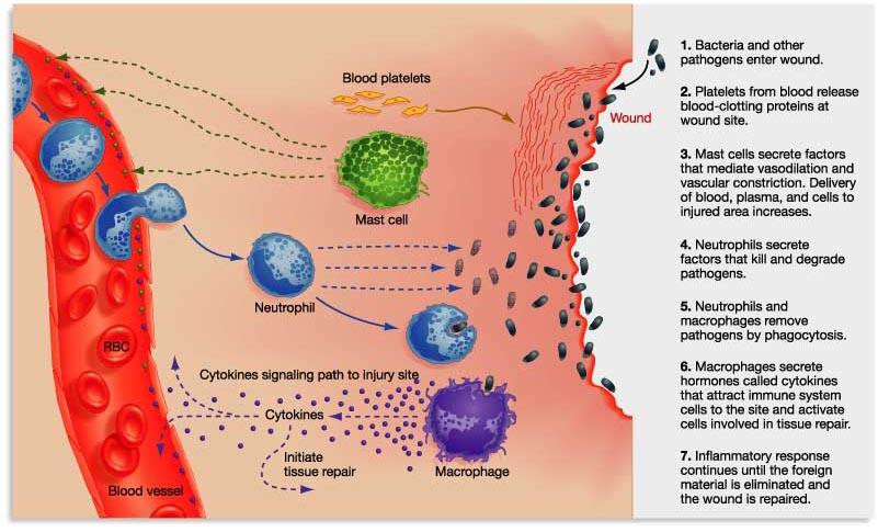 inflammation01a.jpg