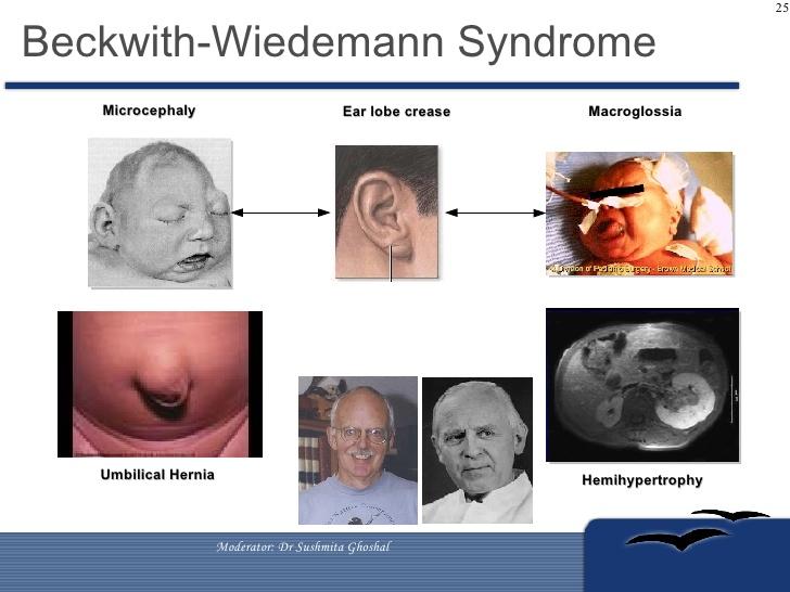 management-of-wilms-tumors-25-728.jpg