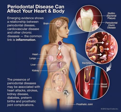 periodontal-disease-systemic_0.jpg