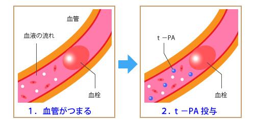 t-PA_01.jpg