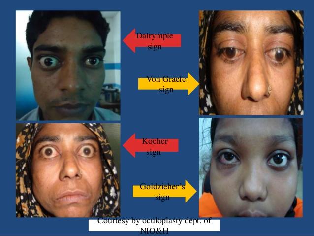thyroid-associated-orbitopathy-of-dr-sohel-mahmud-12-638.jpg