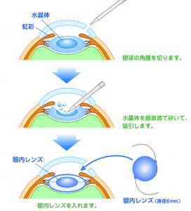 水晶体再建術(白内障手術)