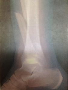 左足関節外側