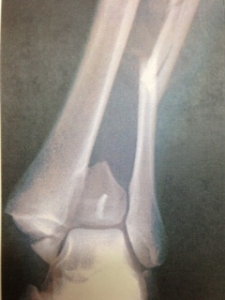 左足関節前方