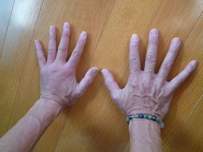 やまねこの手が腫れた~!