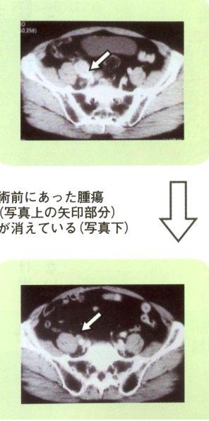悪性リンパ性前立腺がんの治癒