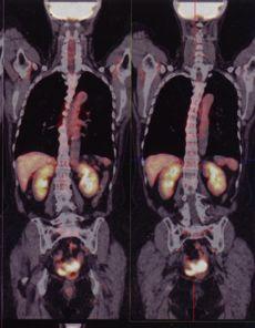 卵巣癌PETCT