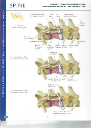 椎間板ヘルニア 分類 画像